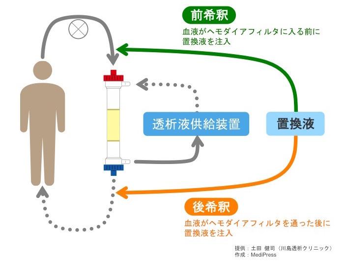 血液濾過透析(HDF)のしくみ | ...