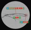 シャント音の確認(1)正常音